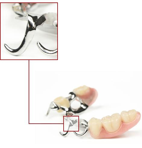 Dental Workings